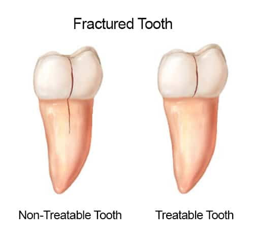Treatable/Non-Treatable Tooth