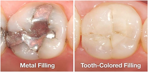 Tooth Colored Filling