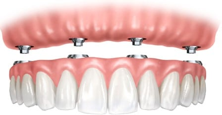 Complete Tooth Replacement